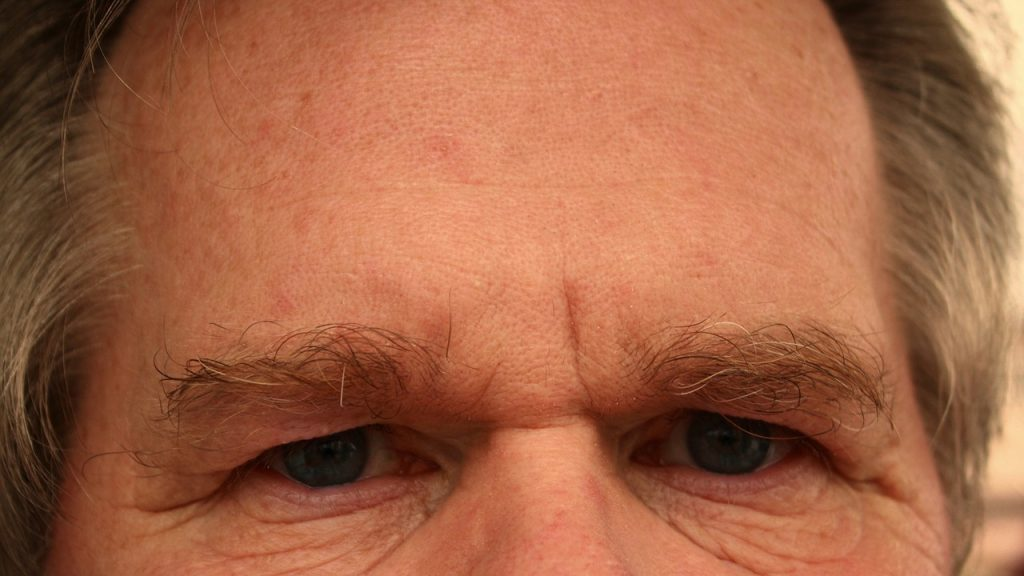 cosmetic surgery forehead lift
